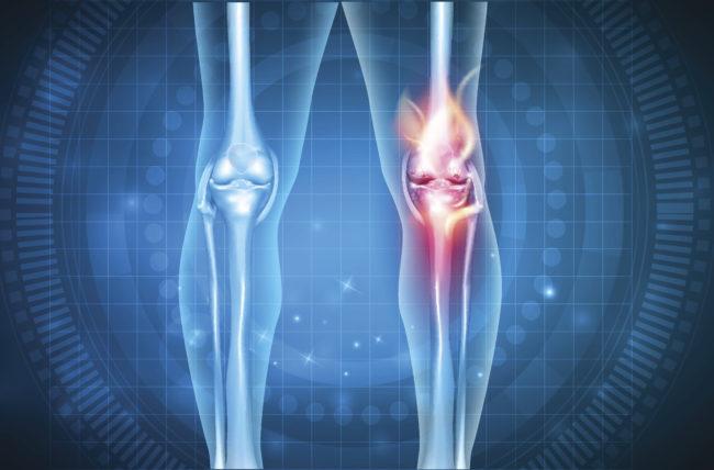 ARTHRITIS LIVEFIT PACKAGE